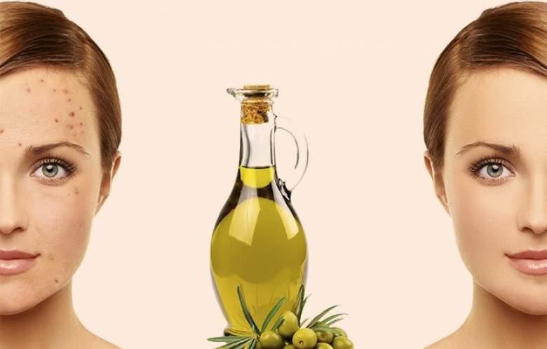 come eliminare acne olio oliva - La Marronaia -